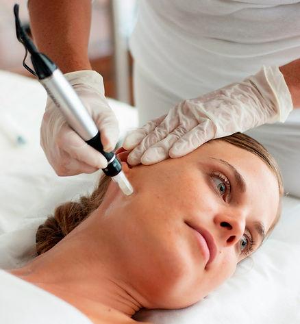 Micro Needling Image - Women haveing micro needling procedure at Joya Women's Healthcare in Portland, OR
