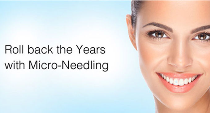 Roll back the years with Micro-Needling Image - Joya Women's Healthcare Obstetrics & Gynecology beauty services
