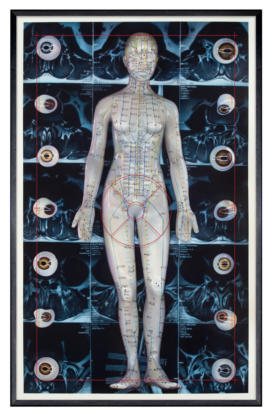 Visible Anatomy: Scanning Stylostixis + Self Portrait, 2014