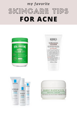My Favorite Skincare Products for ACNE