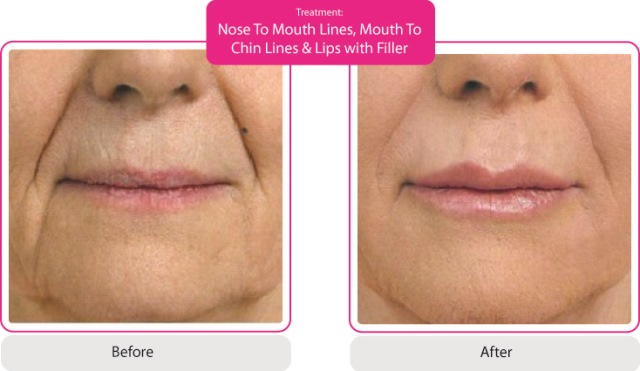 Nose to Mouth Lines | Mouth to Chin