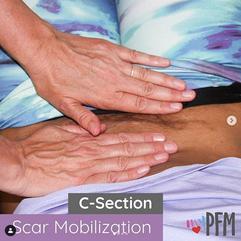 C-section Scar Mobilization