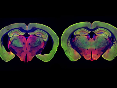 MIT's New Study Explains How Flickering Light Exposure Could Cure Alzheimer