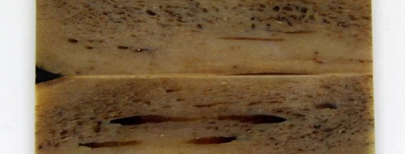 stab. Kuduknochen-Schalenpaar 11