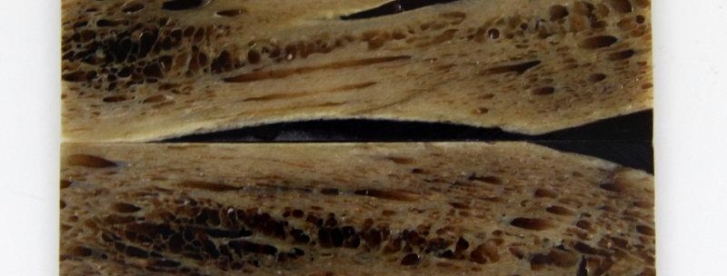 stab. Kuduknochen-Schalenpaar 7