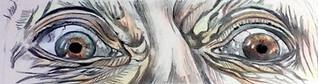 Hazel/ Grey Heterochromia