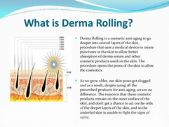 what-is-derma-rolling-for-u.jpg