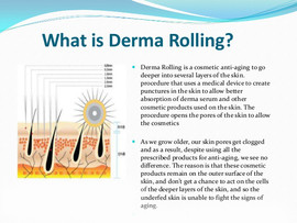 what-is-derma-rolling-for-u.jpg