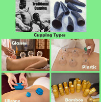 traditsional_cupping-types.jpg