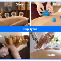 Cupping-therapy-Cup-types.png