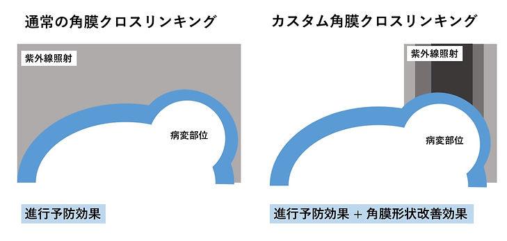 カスタムCXLと通常の比較.jpg