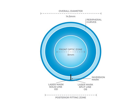 円錐角膜用ソフトコンタクトレンズKerasoft Thin取り扱い開始