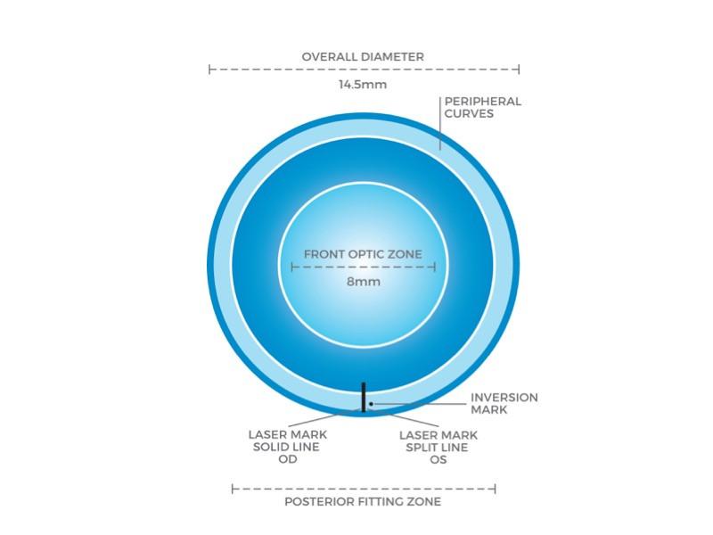 円錐角膜 ソフトコンタクトレンズ