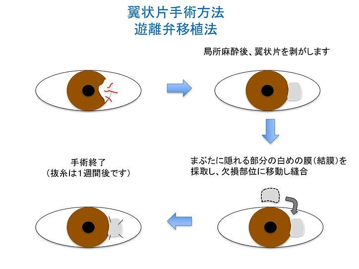 翼状片手術方法