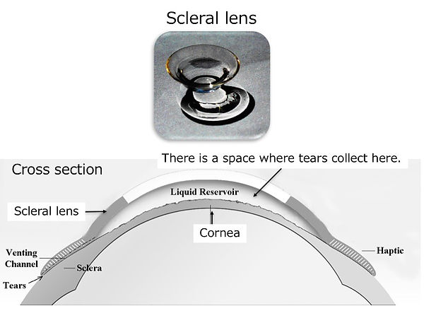 Scleral lens.jpg