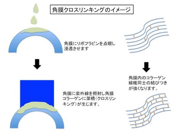 クロスリンキングの原理.jpg