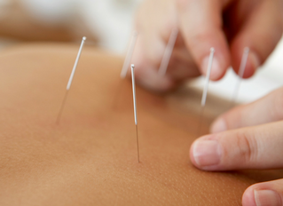 Acupuncture for Stress Relief and Strengthening your Immune System