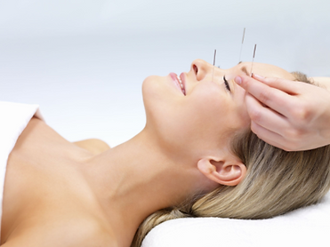 Acupuncture1.png