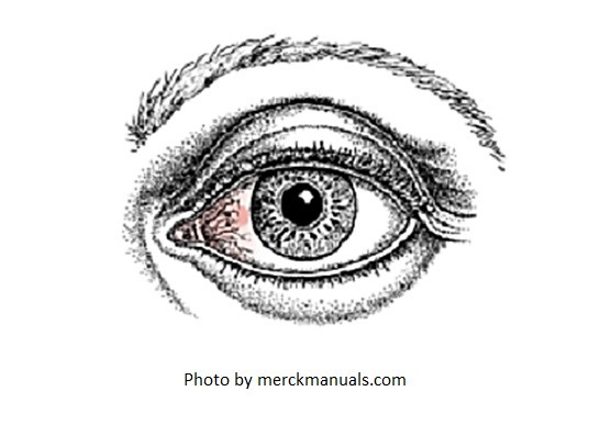 red eye, quick fixes for red eye, vasoconstrictors, red eye relief eye drops