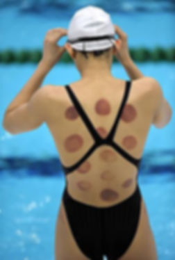 Olympic swimmer with cup marks at 2016 O