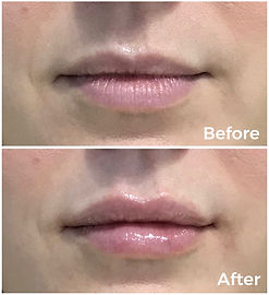 before and after lip filler