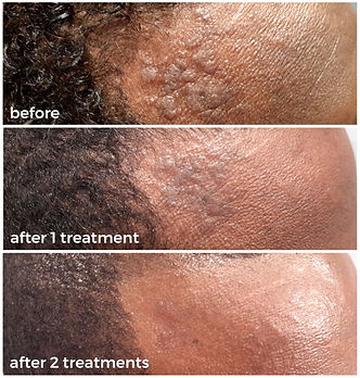 laser for scars before and after