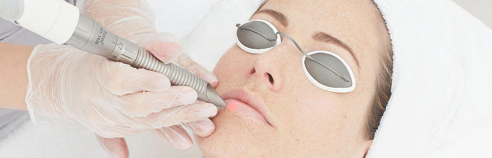 fotona lip plumping.jpg