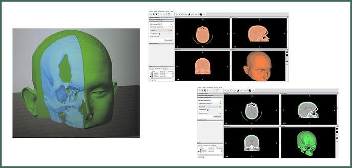 Análise física de tomografia computadorizada