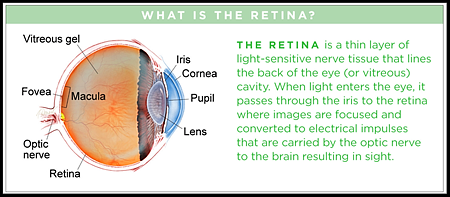 I feared retinal detachment and needed immediate treatment to avoid blindness, BUT....