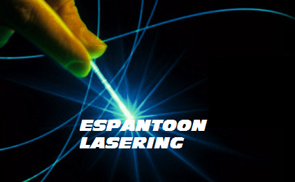 Espantoon Laser Engraving