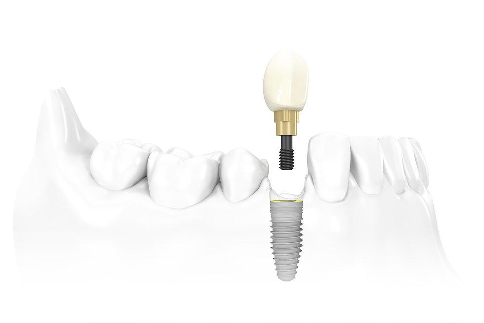 implantatsiya-sumyi.jpg