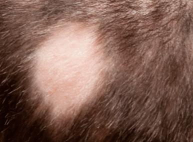 Alopecia Aerata in Urdu language بالچر بالخورہ کا علاج