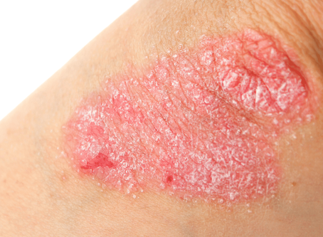 Are Skin Diseases Contagious?