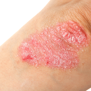 Are skin disease contagious?