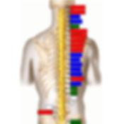 chiropractic-Thermal-Scan-Before.jpg