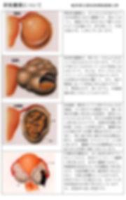 ★卵巣嚢腫の説明.jpg
