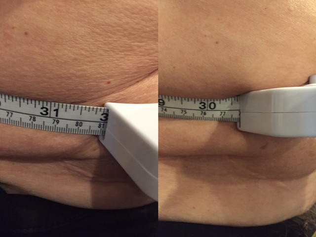 1.25 inch loss         1 session