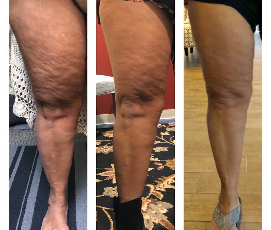 14 Sessions Leg