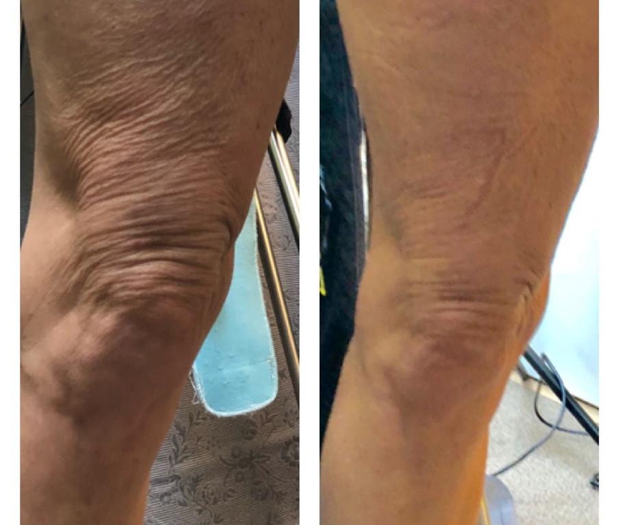 12 Sessions LEG