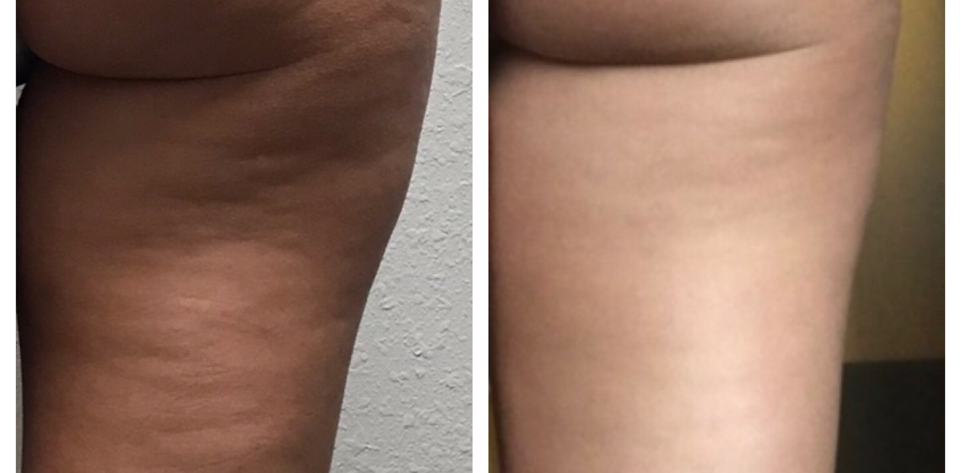 Cellulite 8 sessions