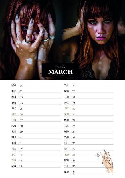 Vitiligo Awareness Calendar 2021