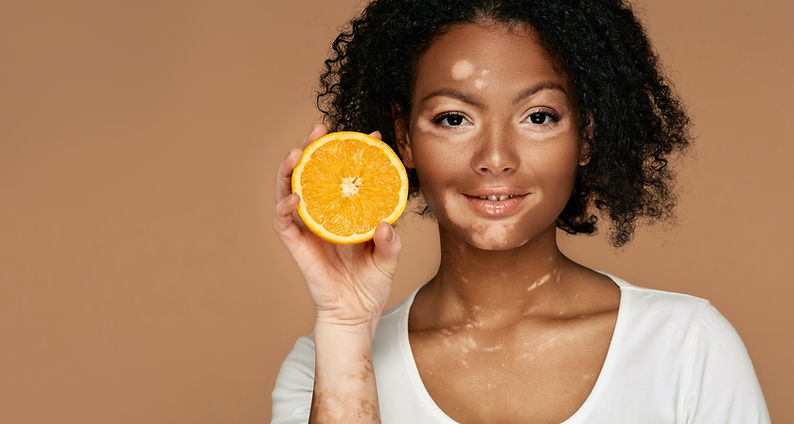 Header vitiligo awareness international