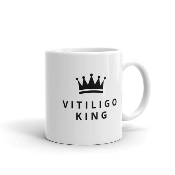 Mug - Vitiligo King