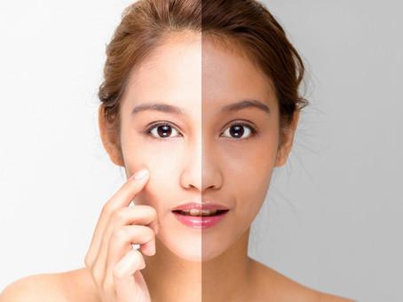 Le blanchiment de la peau : conseils pour éviter les dangers