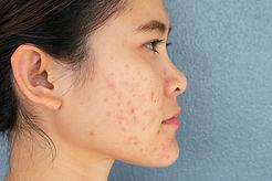 cicatrices-acne-comment-retrouver-une-be
