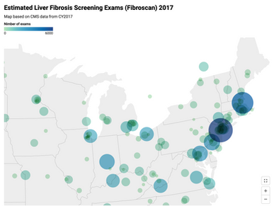Visualizing Liver Screening and Diagnosis