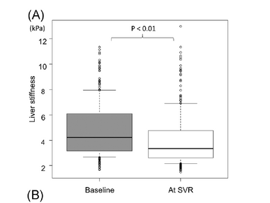 Changes in MRE in HCV patients who achieve SVR