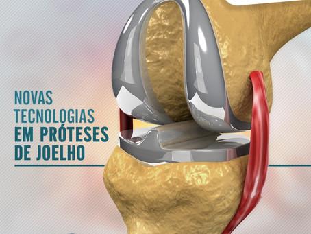 Novas tecnologias em prótese de joelho
