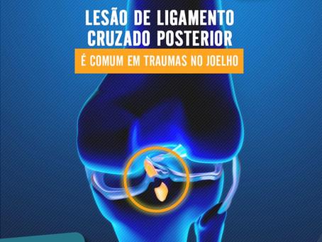 Lesão de ligamento cruzado posterior é comum em traumas no joelho