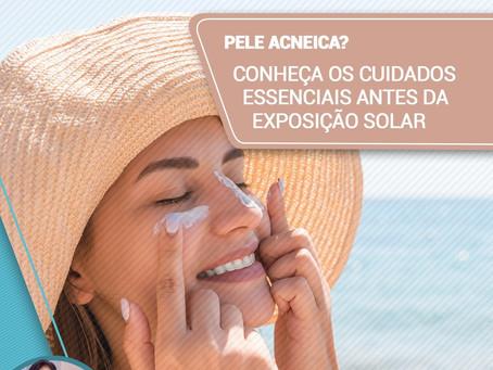 Pele acneica? Conheça os cuidados essenciais antes da exposição solar
